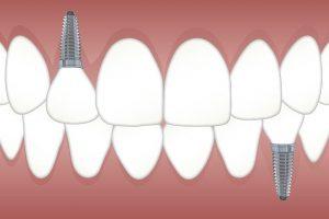 implant nedir?